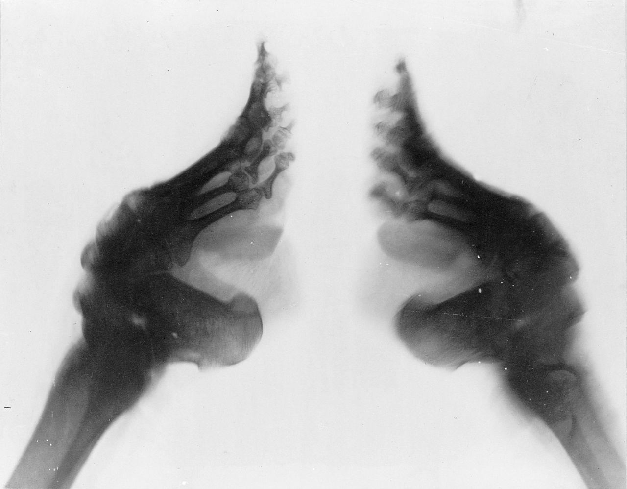 radiographie-pieds-bandés-chine