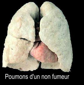 poumon-de-non-fumeur