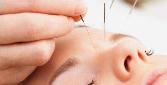 acupuncture-lifting