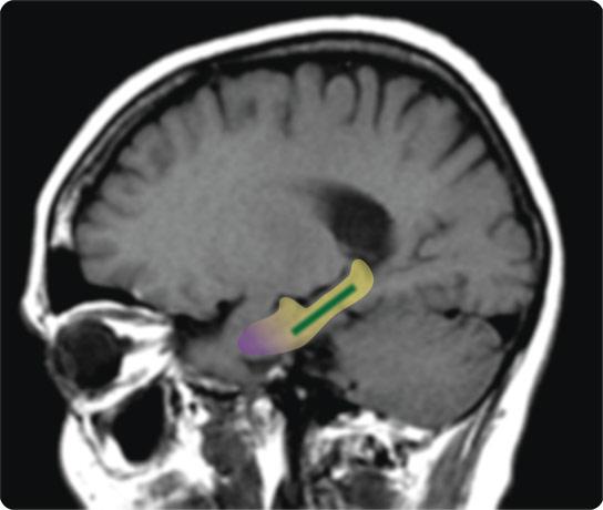 hippocampe-cortex-gyrus-dentelé