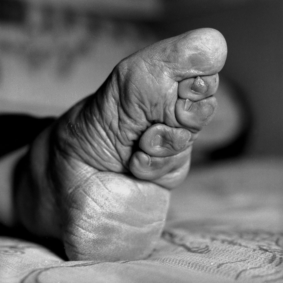 pieds-de-lotus-d-or-chine-pieds-bandés