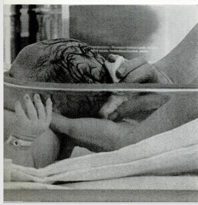 La nurse tenant fermement la tête, lave Steven avec une solution apaisante